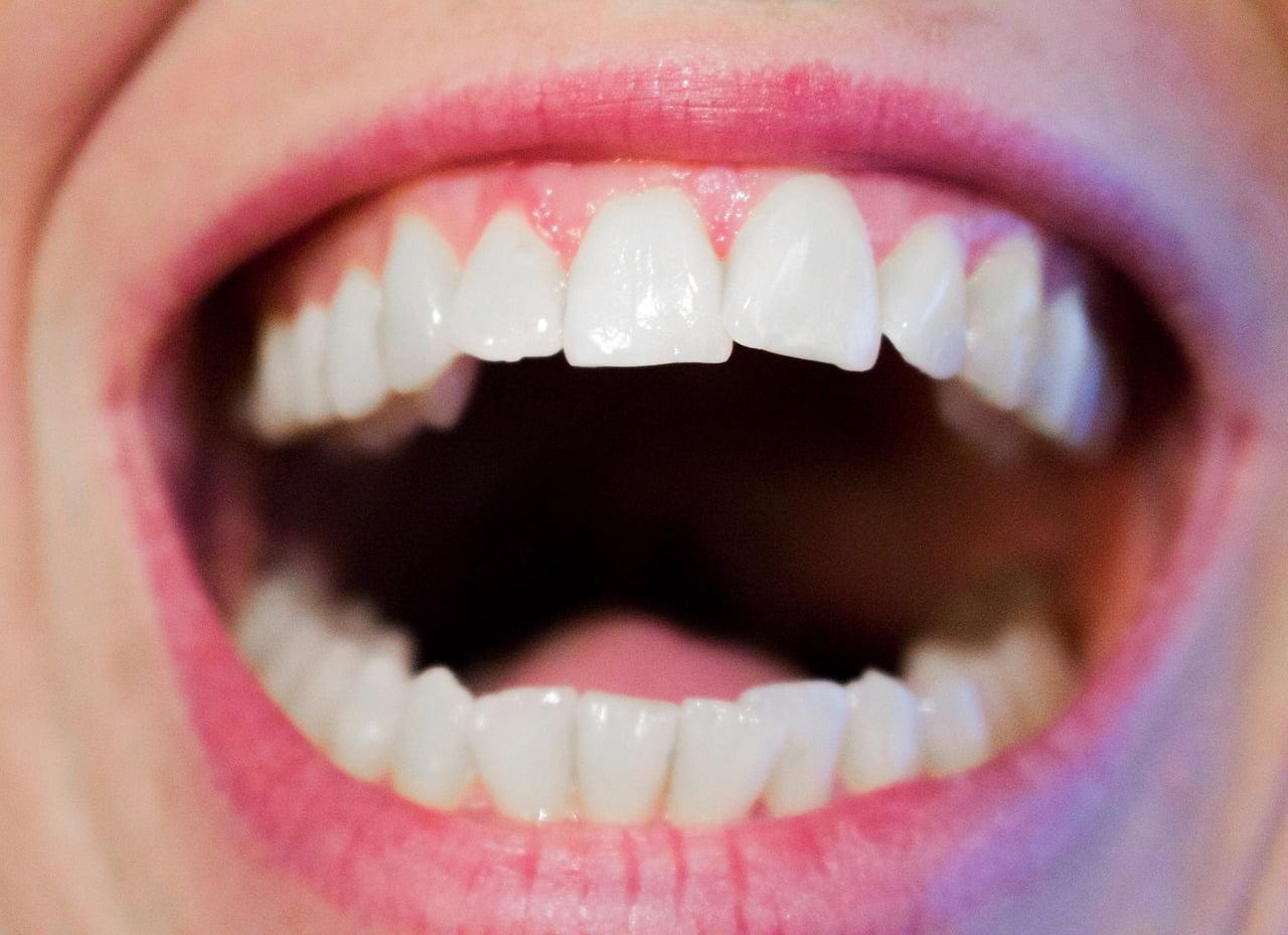 Estetica dental Coruña