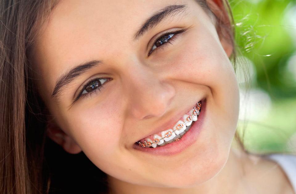 4 consejos para cuidar tu aparato de ortodoncia
