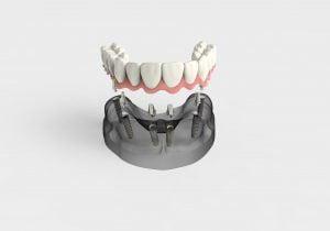 protesis sobre implantes