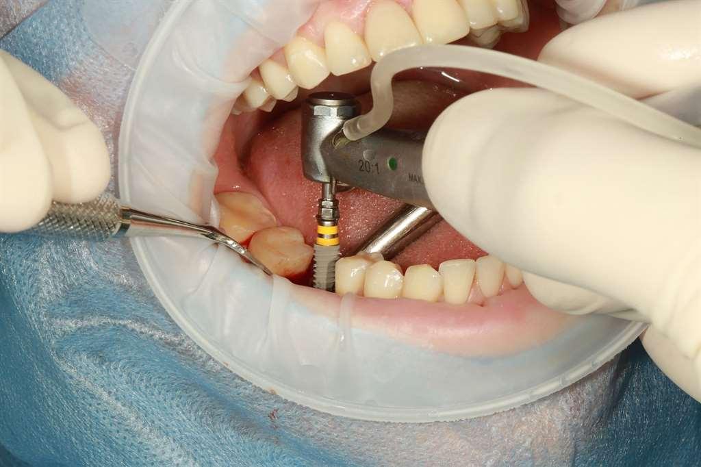 ¿Cómo cuidar un implante dental?