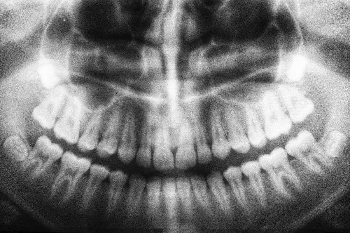 Desgaste de dientes: ¿Por qué ocurre?